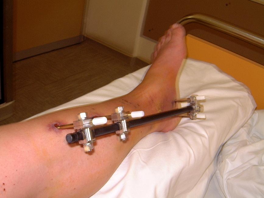 finger operation nach bruch